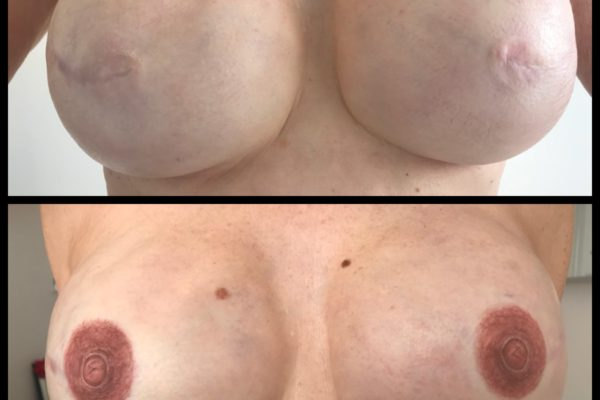 areola and 3-D nipple front