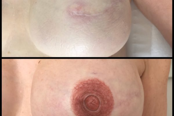 areola and 3-D nipple left side close up