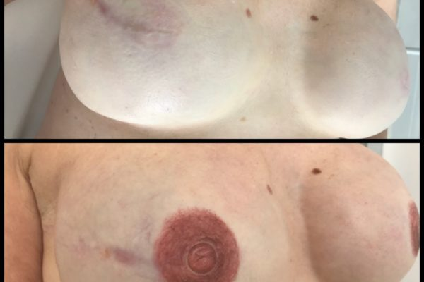 areola and 3-D nipple right close up